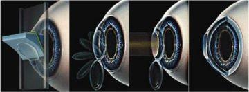 Лечение астигматизма в «Первой Глазной Клинике»